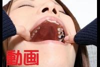 紗知ちゃんの歯 もっと銀歯あるじゃん!?